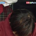 【悲報】Hey! Say! JUMPの山田涼介くん、ハゲる(画像あり)